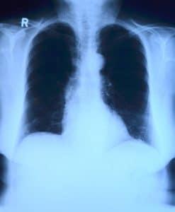 Der Verdienst der Radiologen ist am höchsten.